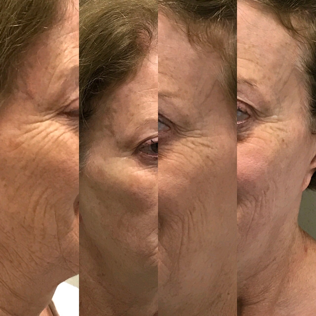 HIFU before and after beauty treatment course