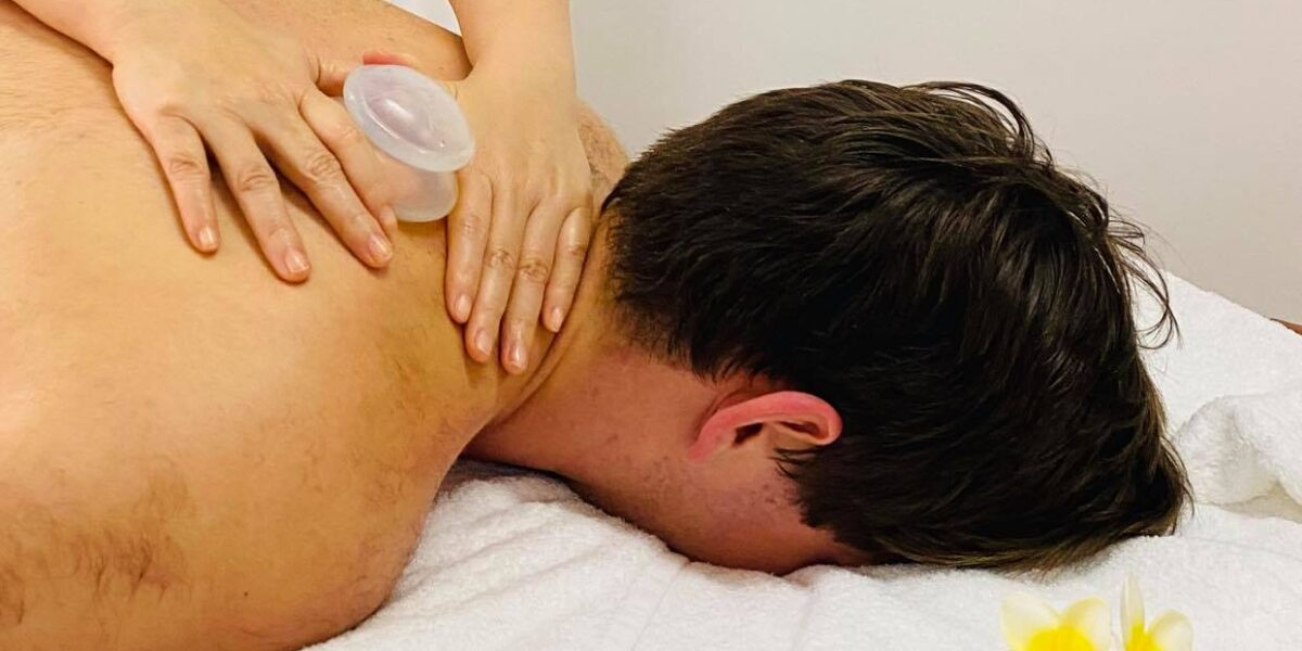 Myofascial Cupping Therapy
